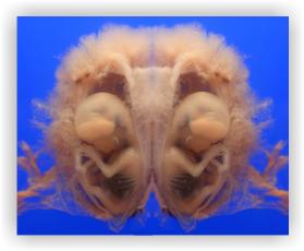 méhen belüli fotók9